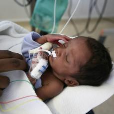 CT3TRC PREMATURE BABY